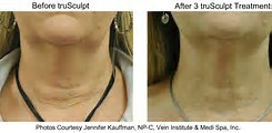 truSculpt Procedures